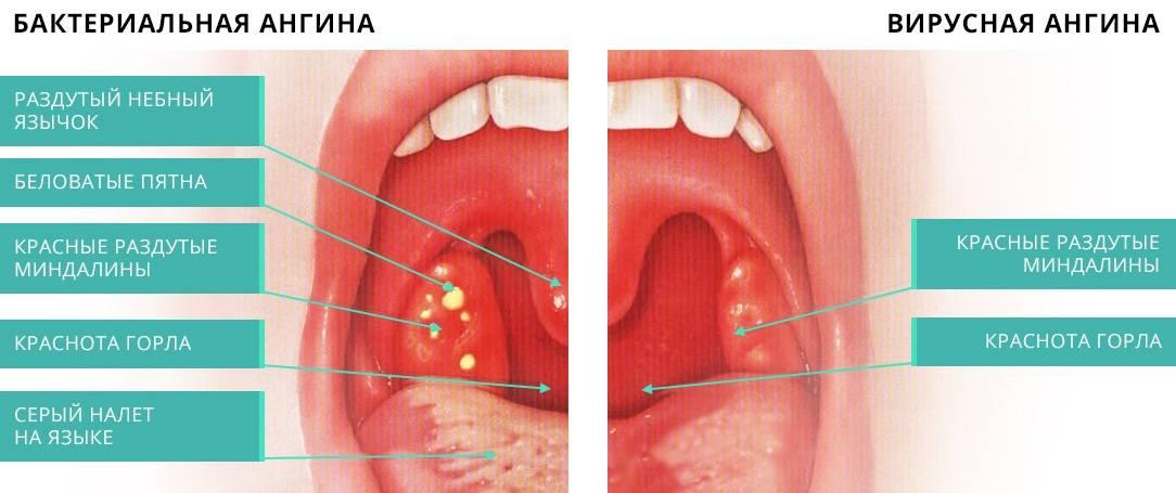 Что делать, если горло не болит, а глотать больно