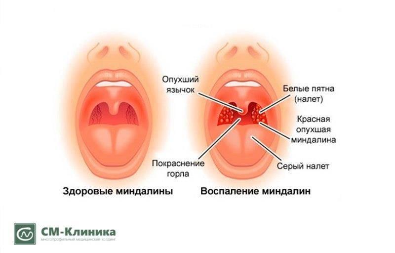 хронический тонзиллит последствия заболевания