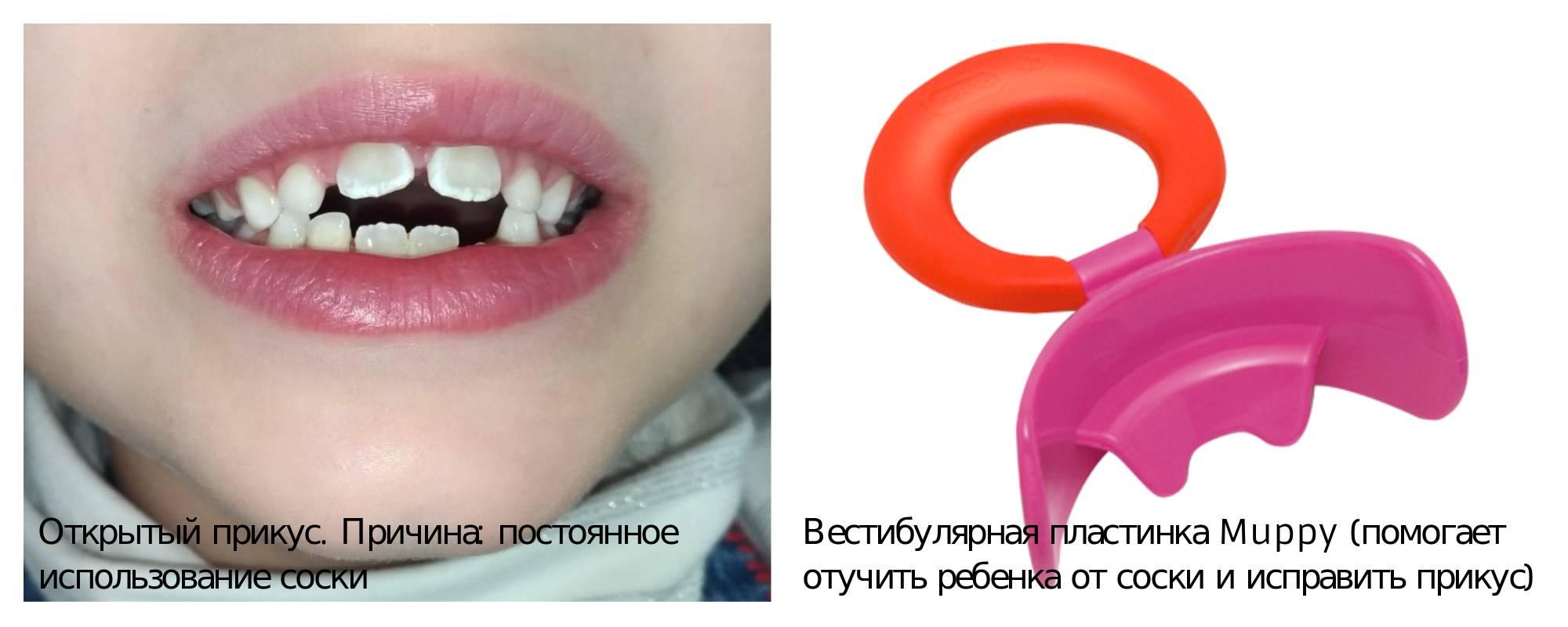 Мы твои сестрички, мы- твои привычки! - вестибулярная пластинка отзывы - запись пользователя алина русикова (rusikova) в сообществе воспитание, психология - от года до трех в категории всё о сосании соски, пустышки, пальчиков - babyblog.ru