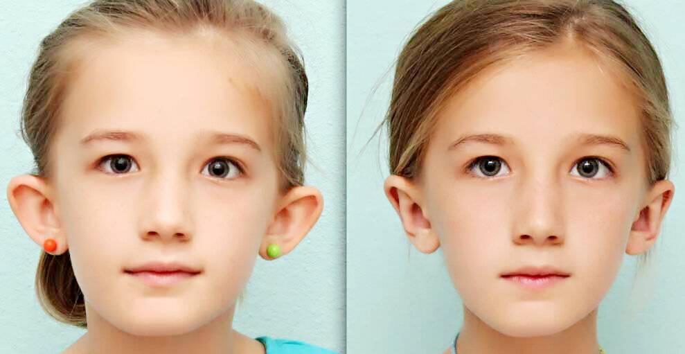 Отопластика в москве, цены, сколько стоит операция по коррекции ушей, устранение лопоухости
