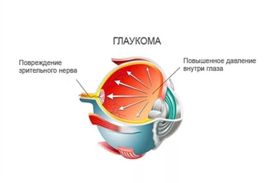 Как лечить глаукому в домашних условиях: приступы и симптомы