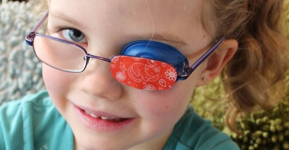 ленивый глаз у детей лечение