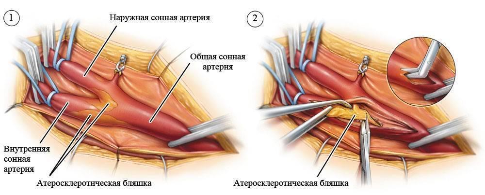 холестериновые бляшки операция