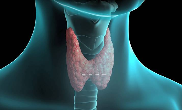 щитовидная железа угри