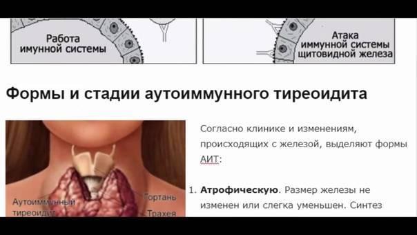 Аутоиммунный тиреоидит щитовидной железы (аит)