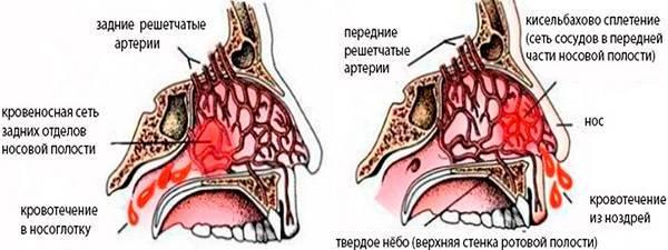 Частые кровотечения из носа: в чем причины и что делать?