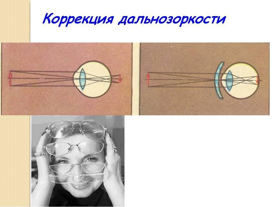 Как быстро восстанавливается зрение после лазерной коррекции гиперметропии?