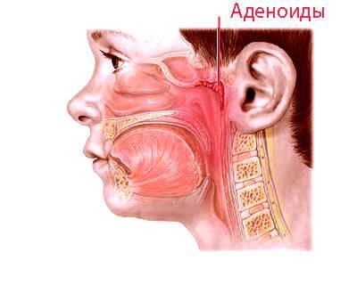 Чем лечить воспаление носоглотки быстро и эффективно