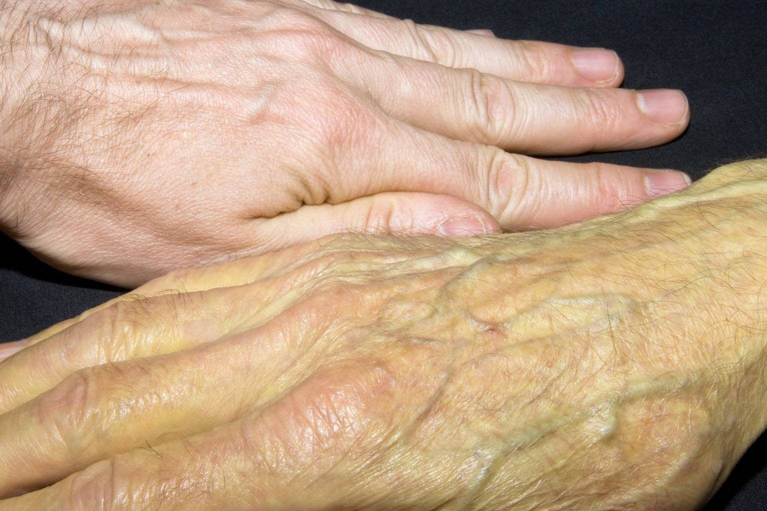 кожные проявления при заболеваниях печени