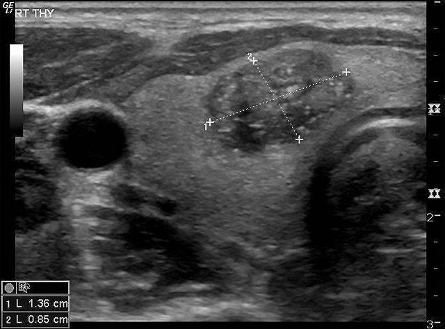 Кальцинированный узел щитовидной железы лечение