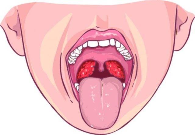 Симптомы и лечение абсцесса горла