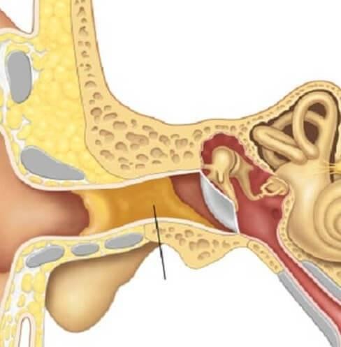 Двусторонний тубоотит: симптомы и способы лечения