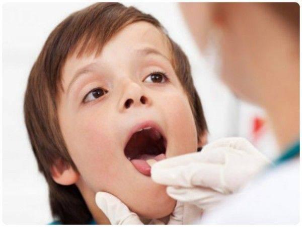 Белые пузырьки в горле у взрослого