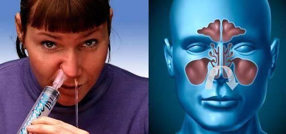 Как и чем промыть нос ребенку в домашних условиях и можно ли промывать нос грудничку / mama66.ru