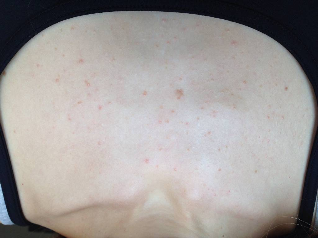 Как выглядят высыпания на коже при заболеваниях кишечника и жкт
