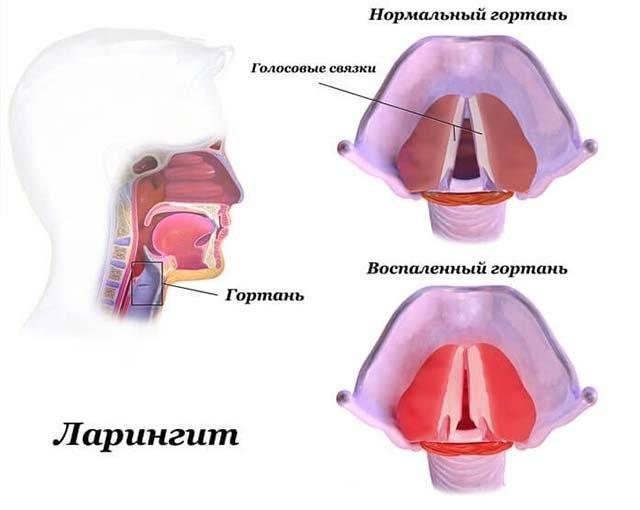 Чем можно снять отек слизистой носа у ребенка при аденоидах?