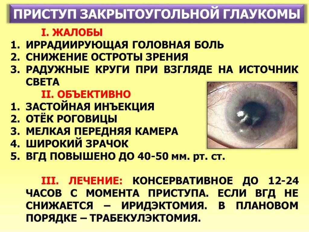 неотложная помощь при остром приступе глаукомы