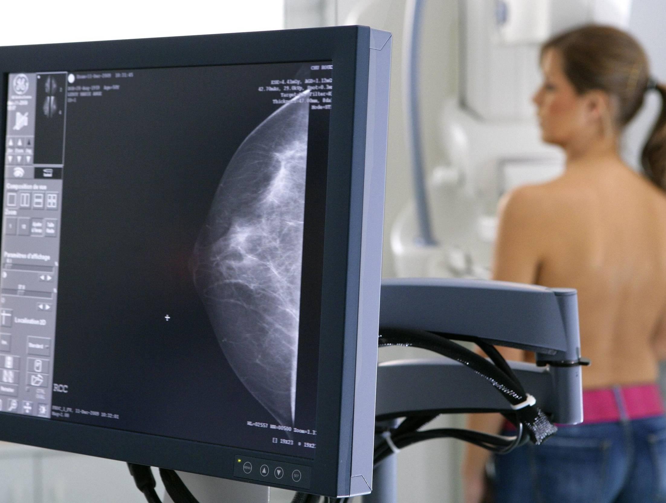 что лучше узи груди или маммография
