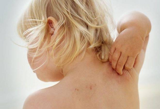 лечение чесотки у детей до 3 лет
