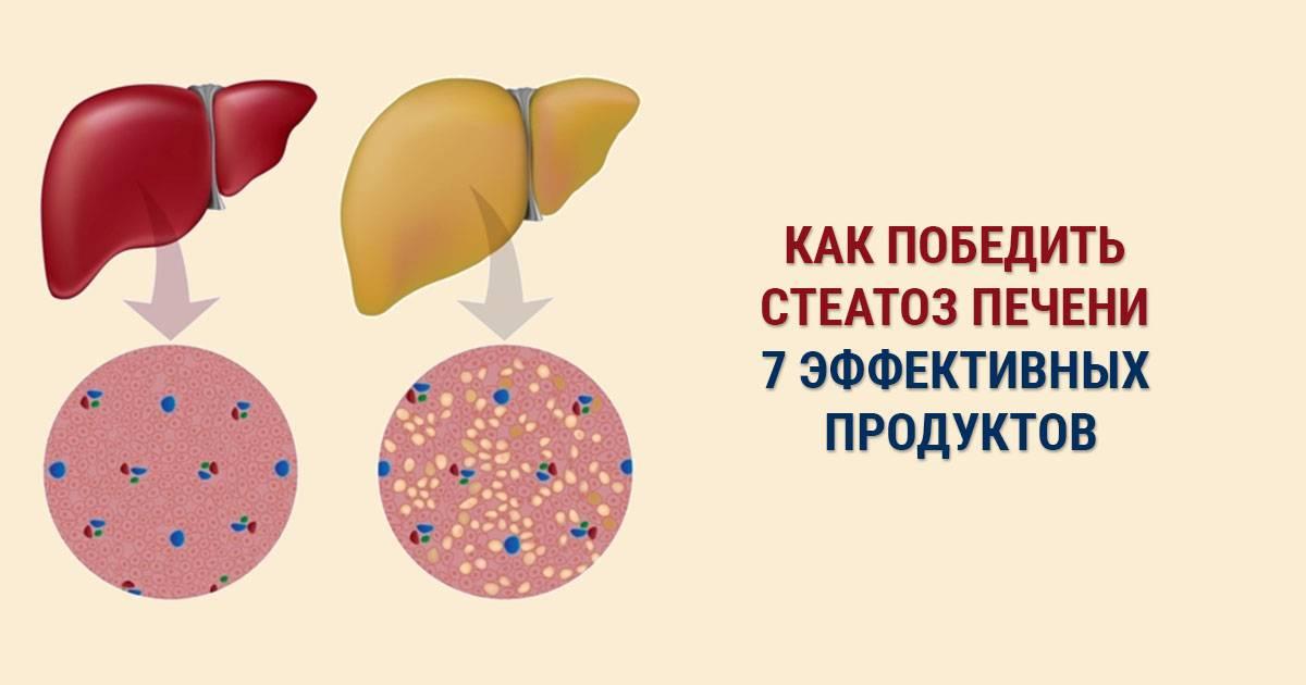 диета при стеатогепатозе печени