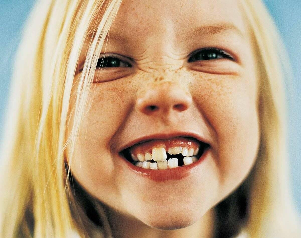 Передние верхние или нижние зубы стали кривыми - неужели из-за восьмерок?