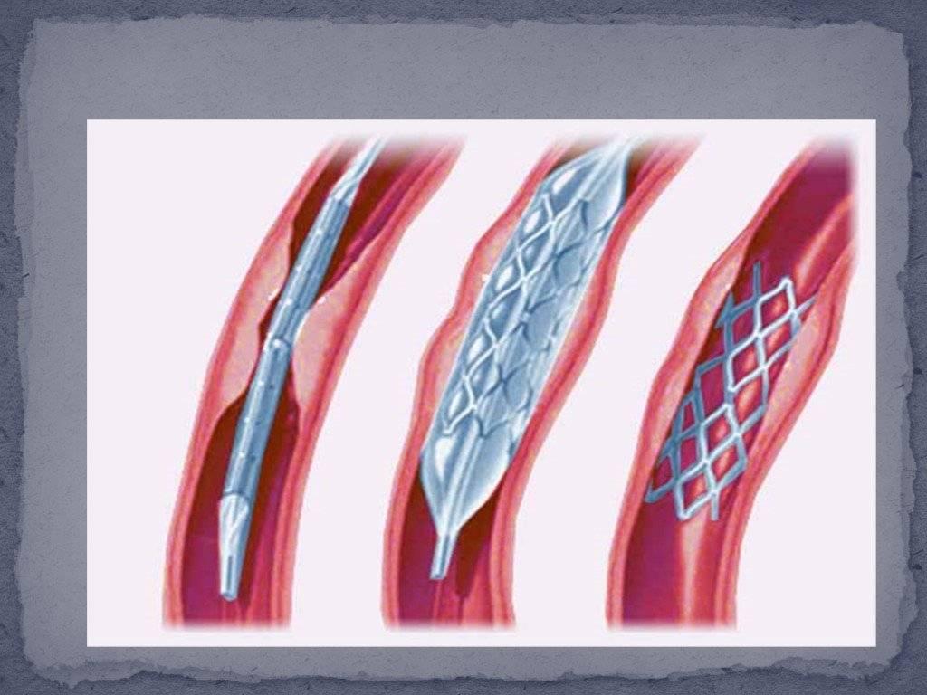 Восстановление просвета артерий с помощью ангиопластики сосудов