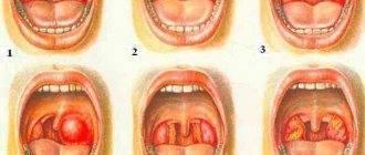 Может ли от граната болеть горло