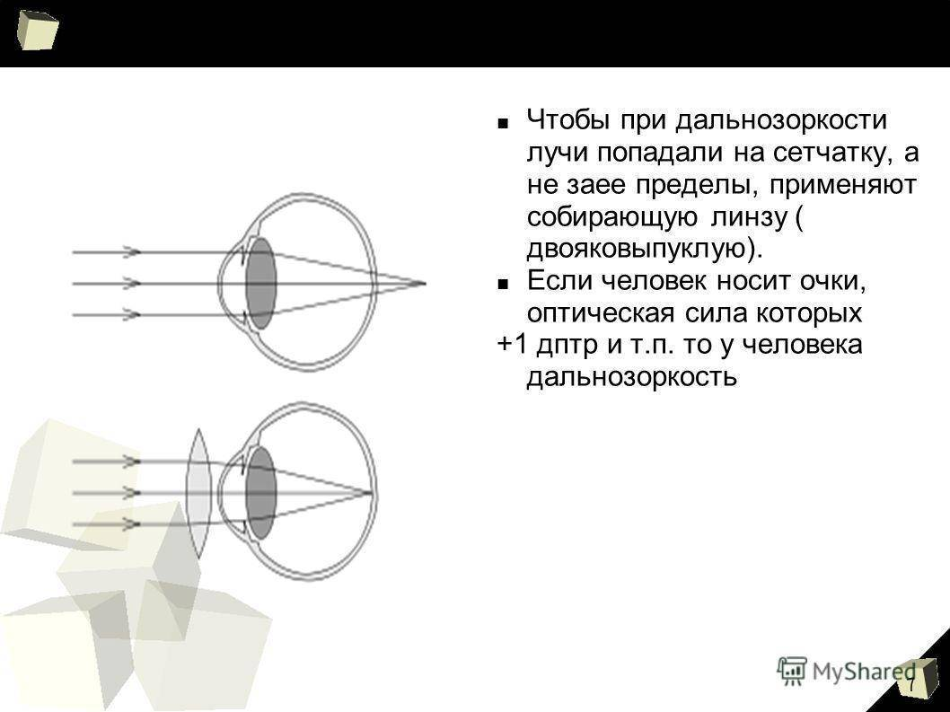 Какие контактные линзы при дальнозоркости лучше выбрать и как за ними ухаживать