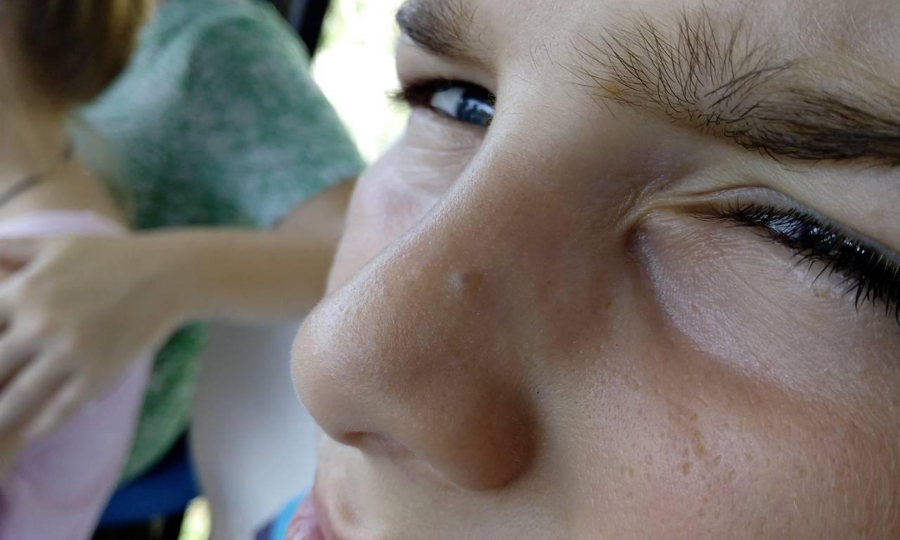 Прыщ в носу (внутренний): причины и лечение, если он вскочил внутри носа