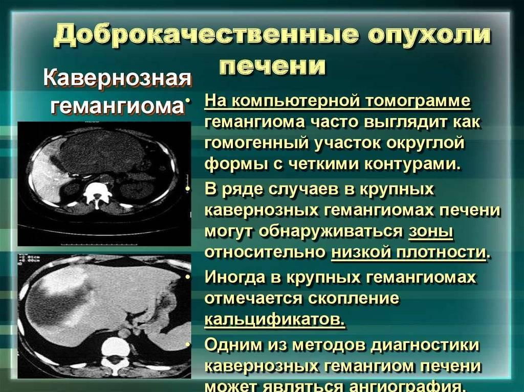 Как проявляется рак печени: симптомы, диагностика, лечение и прогноз