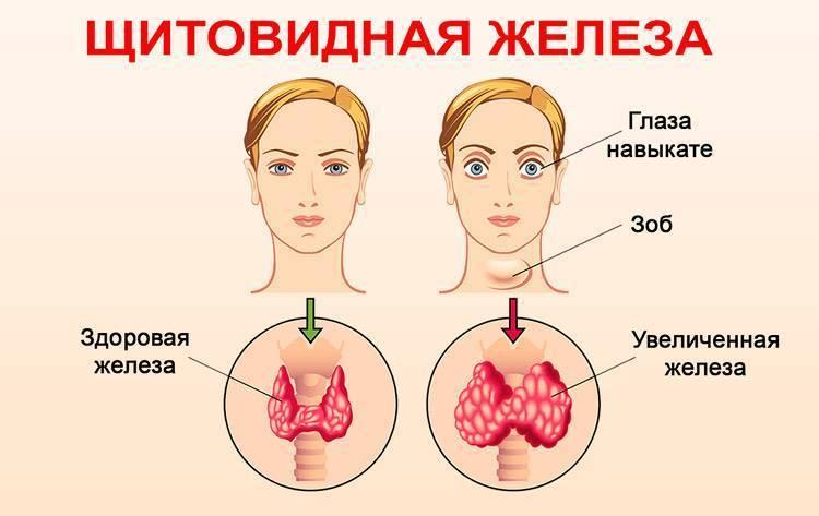 щитовидная железа симптомы заболевания лечение