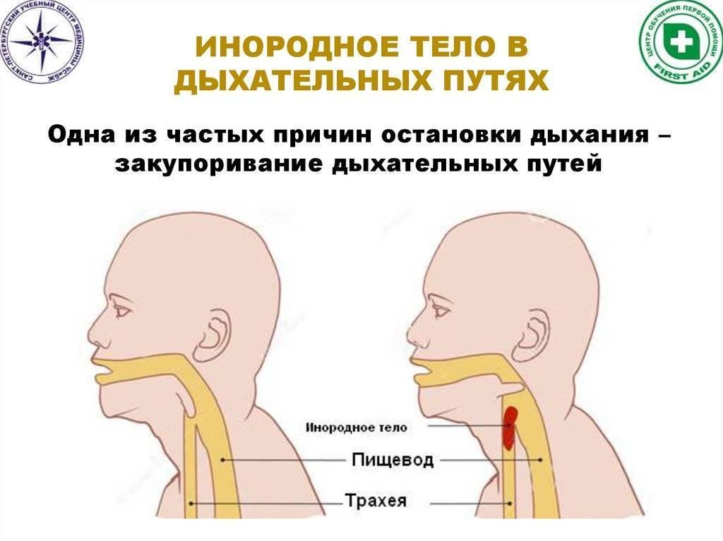 Затруднен кашель на вдохе
