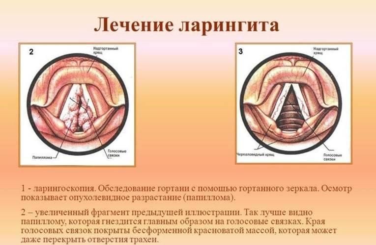 болезни гортани
