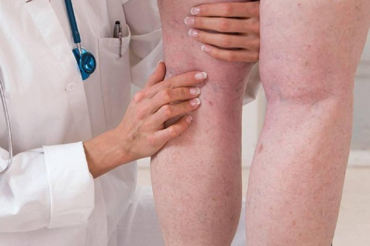 Что такое атеросклероз сосудов? признаки, причины и методы лечения [инфографика]