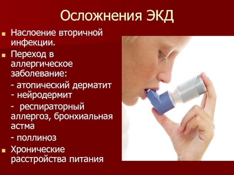 атопический дерматит астма