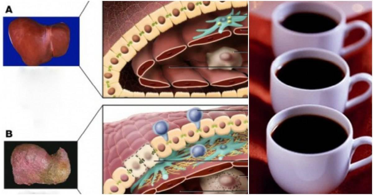 Влияние кофе на печень: можно ли пить при циррозе и гепатитедиагностика и лечение печени и желчного пузыря