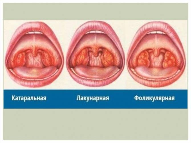 как заболеть ангиной за 1 день