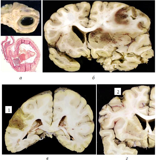 атеросклероз церебральный лечение