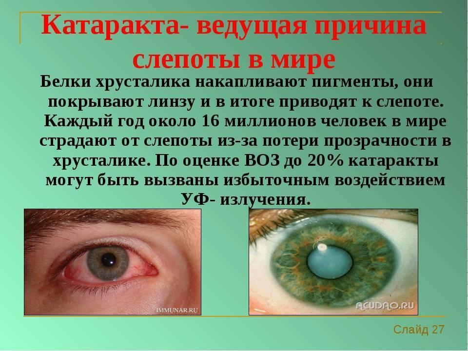 Причины слепоты. кем и как ставиться диагноз слепота