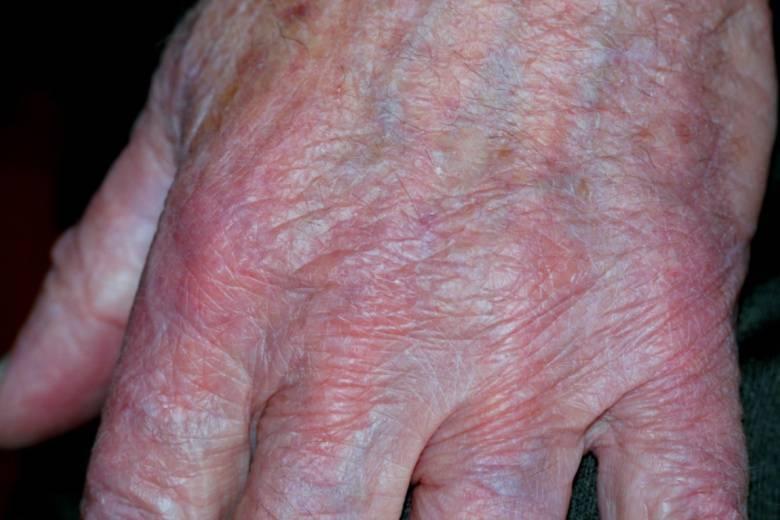 Кожный дерматит – всё о различных видах, диагностике и лечении заболевания