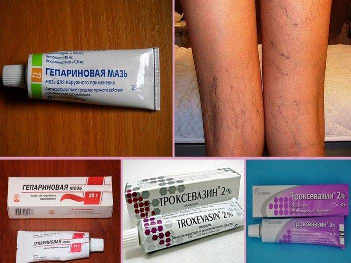 Венозный дерматит: причины, внешние проявления и лечение