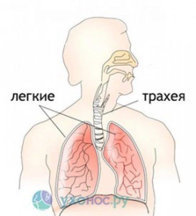 Лекарственные препараты при трахеите