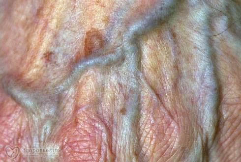 атопический дерматит половых органов