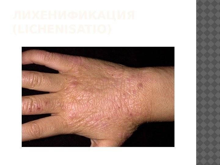 Периоральный дерматит – причины появления и особенности лечения