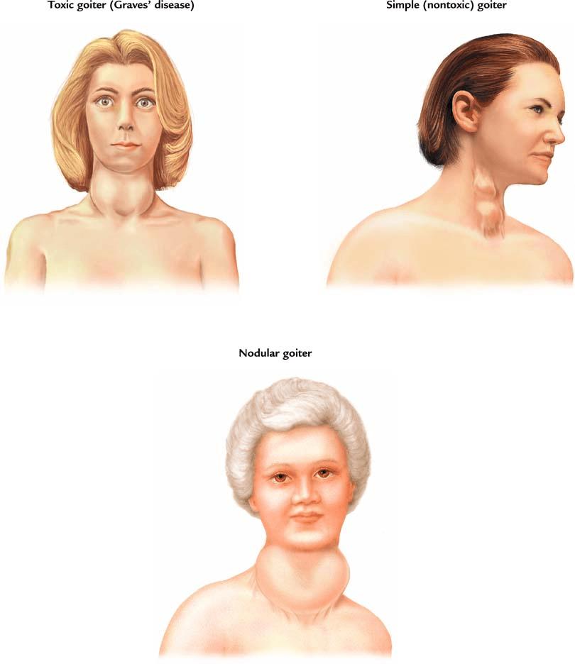 Симптомы и лечение диффузно-узлового зоба щитовидной железы