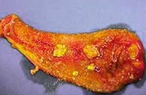 Что такое холестероз желчного пузыря: формы, признаки, клинические рекомендации, диета