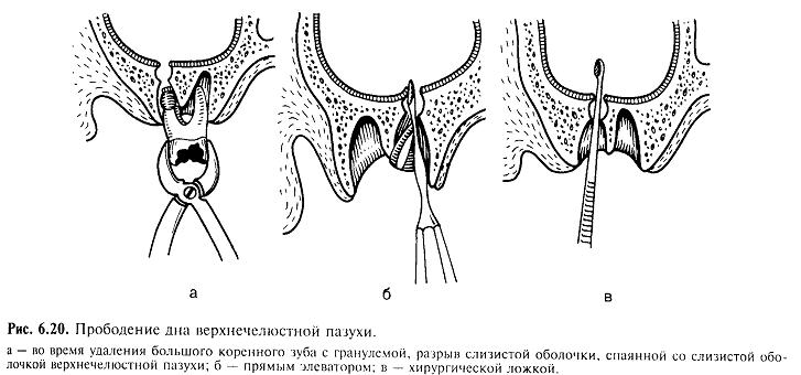 перфорация гайморовой пазухи диагностика