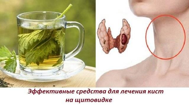 узел на щитовидной железе лечение народными средствами