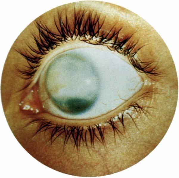 мутные белки глаз причины