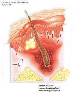 Особенности лечения фурункулов в носу